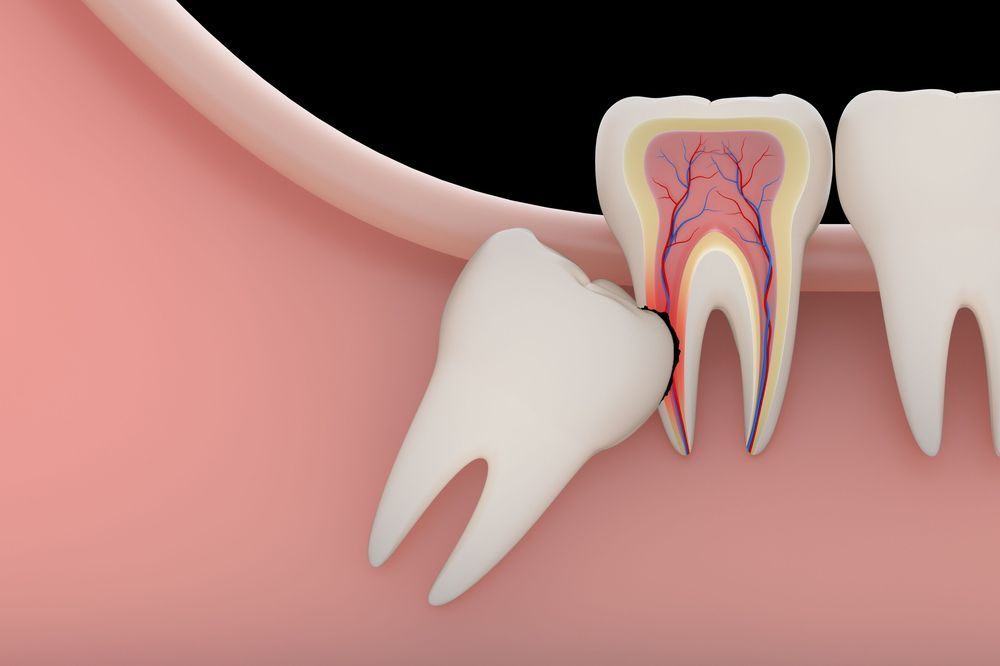 An illustration of an impacted wisdom tooth