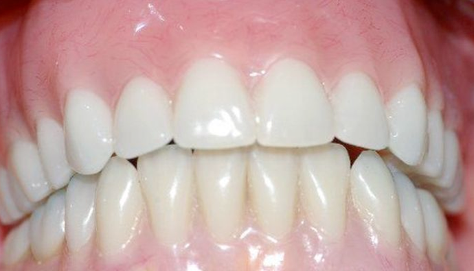 A smile fully restored with dental implants