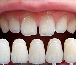 Teeth shown against several veneers to match color