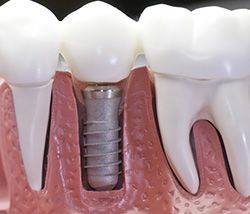 Illustrative plastic model of dental implants