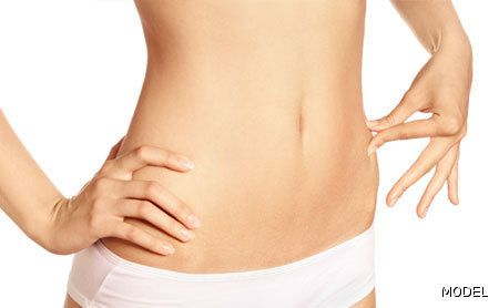 Tummy Tuck Surgery - Little Rock, AR - Dr. Michael Devlin photo
