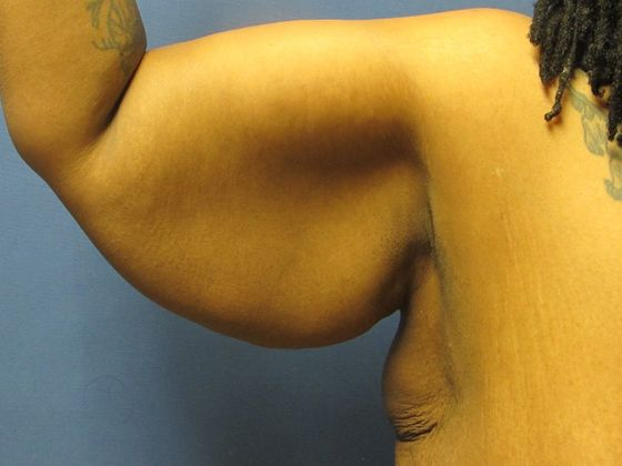 Flexing upper arm with loose skin