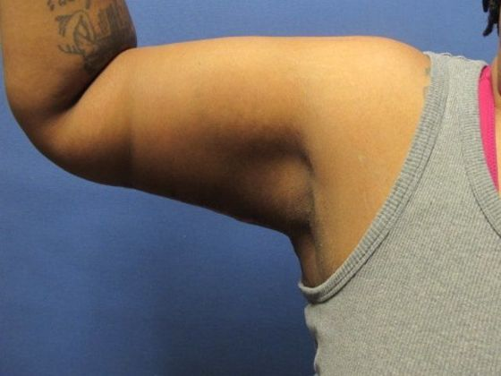 Flexing upper arm with tightened skin