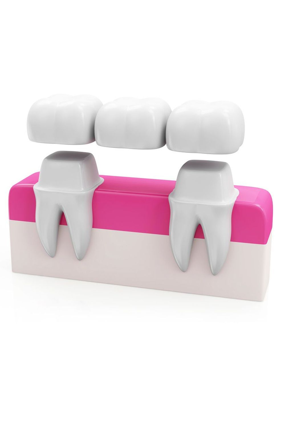 An illustrated example of a dental bridge