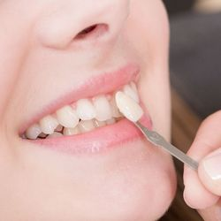 Dentist places a veneer on a tooth