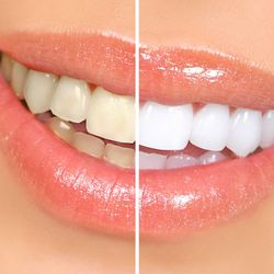 Smile simulation of before and after teeth whitening