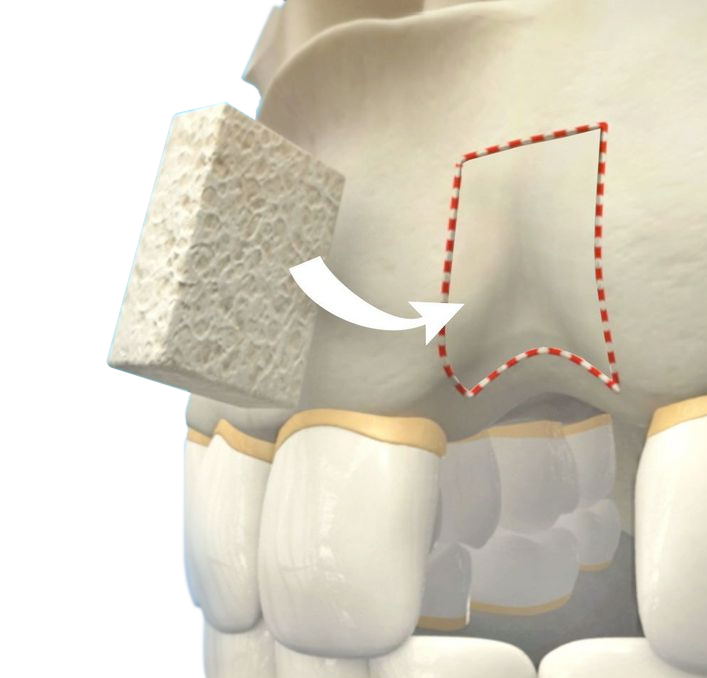 Illustration of a bone graft fitting into the jaw above a tooth