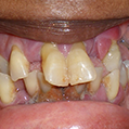 Featured Case 1 Before