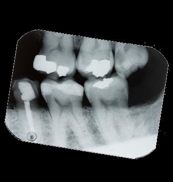 An -X-ray of the teeth