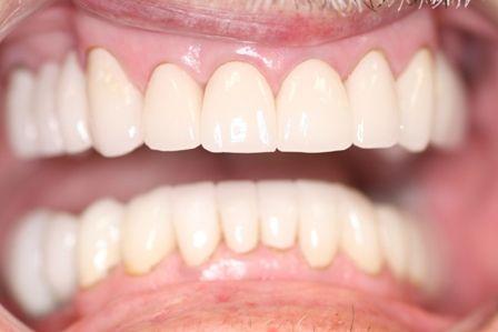 restored teeth