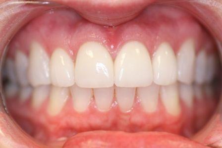 symmetrical teeth