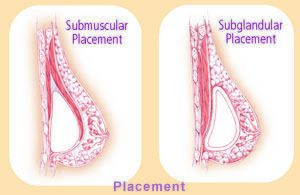 cutaway illustration showing submuscular placement and subglandular placement of breast implants