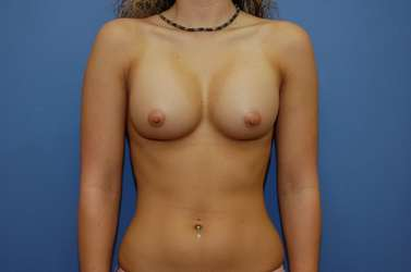 Three weeks after breast augmentation photo