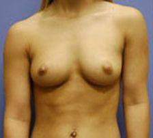 before breast augmentation photo