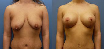 side by side pictures before and after a breast lift