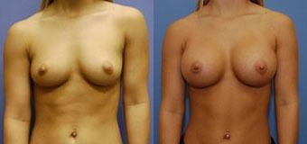 side by side before and after pictures of breast augmentation with implants