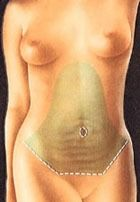 medical illustrations showing steps of tummy tuck