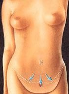 illustration showing tummy tuck incision