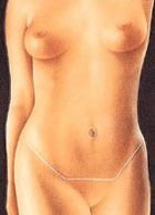 illustration showing scar location of tummy tuck incision