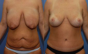 side by side before and after picture of combined tummy tuck and breast lift