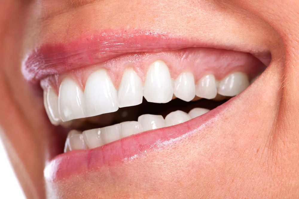 A close up of a person's smile after gum contouring