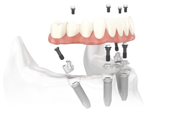 Demonstration of how dentures attach to implant posts in the jaw.