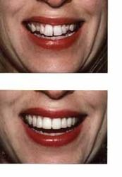 Before and after comparison of veneer treatment