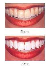 before and after comparison of teeth whitening