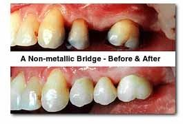 before and after comparison of dental bridge treatment