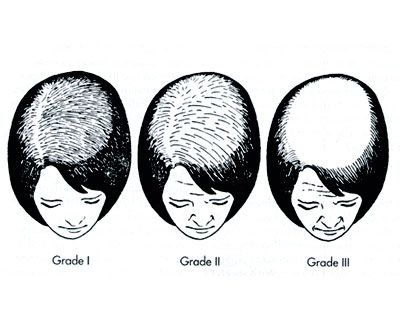 Ludwig classification of female pattern hair loss