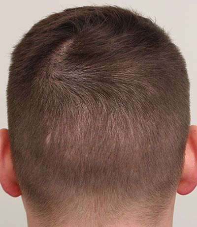 FUE patient 5 months after surgery