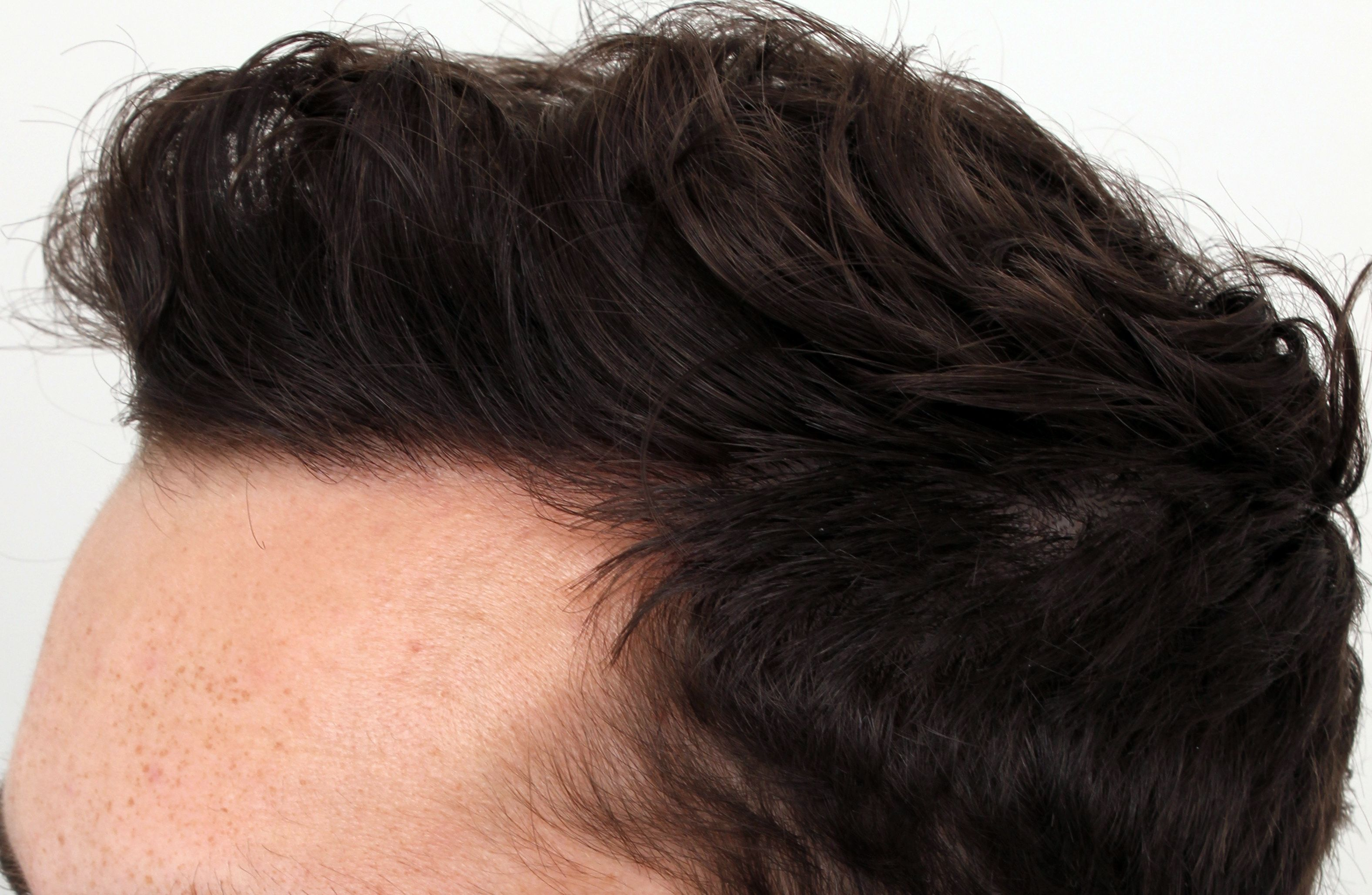 Doctor examining male patient's hairline