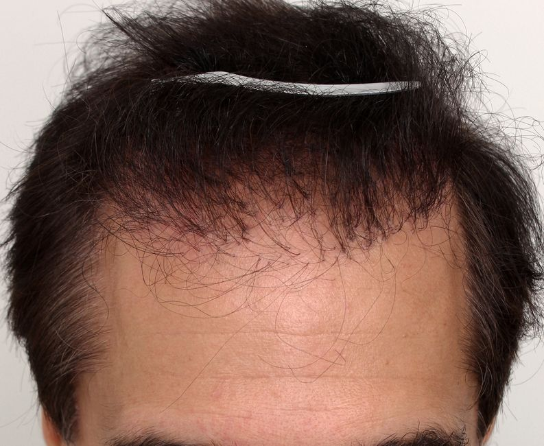 Hair restoration patient