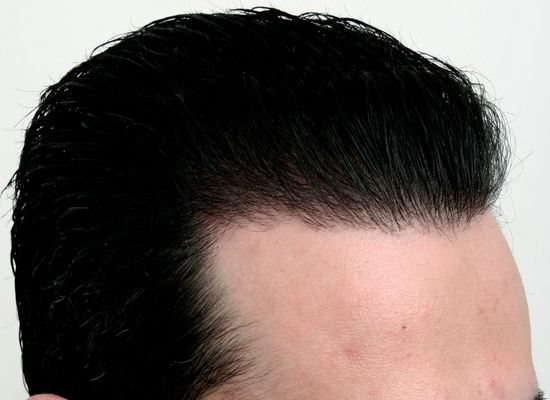 After hair restoration