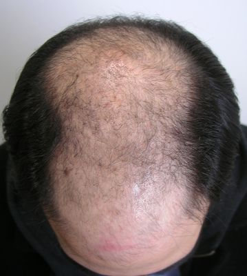 Top of man's balding head