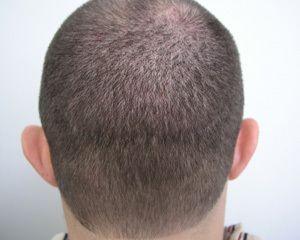 after hair restoration