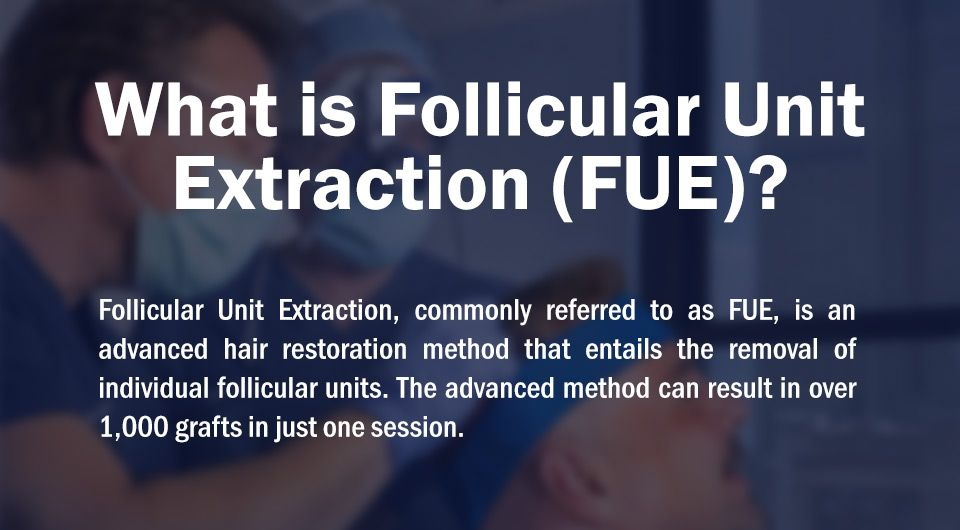 FUE infographic