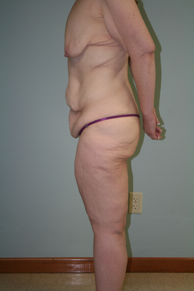 Side view of patient's body before panniculectomy