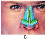 An illustration showing where cartilage can be placed during rhinoplasty