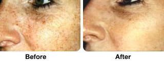 A before and after comparison of a face that has received IPL cosmetic treatment.