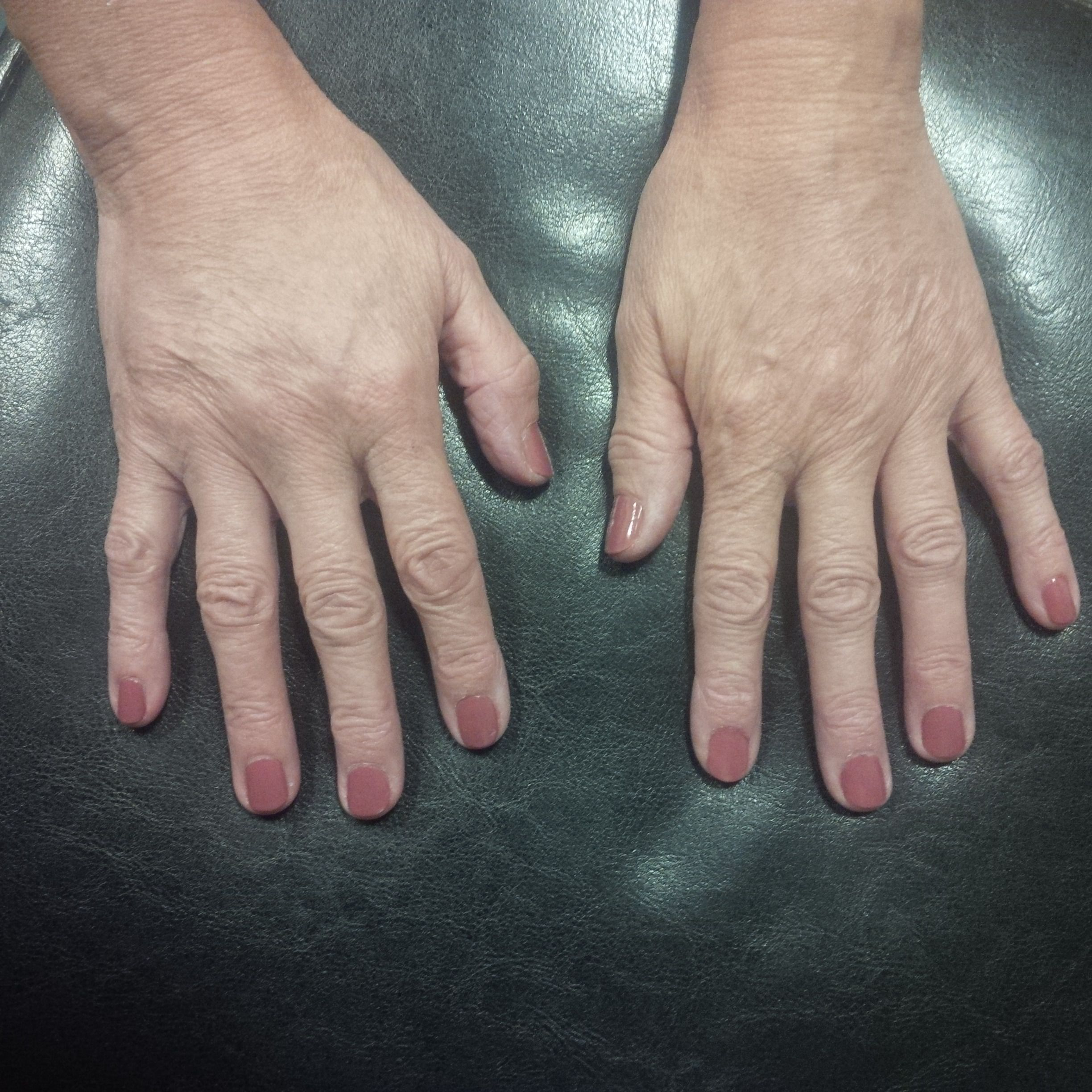 Backs of hands after fillers