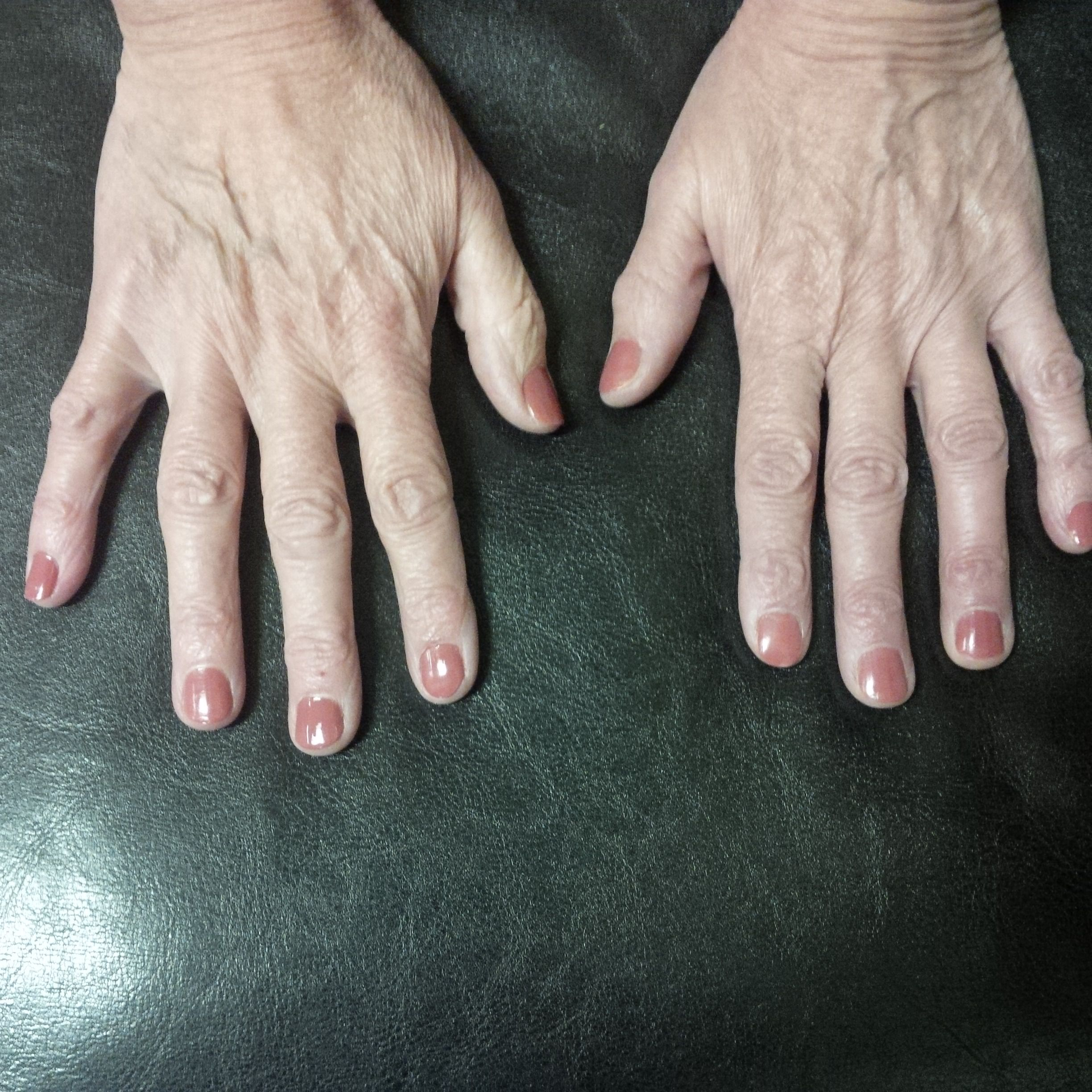 Back of hands before fillers