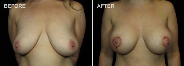 Before and after photos of a breast lift