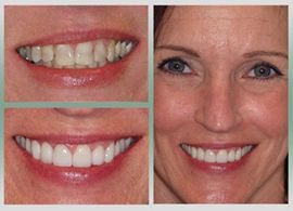 Before and after images of a woman's smile.
