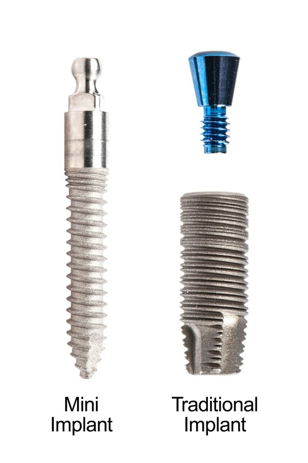 Mini and traditional dental implants