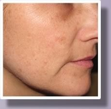 A closeup view of a woman's face before her IPL photofacial treatment.