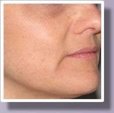 An after view of a woman's face after IPL photofacial treatment.