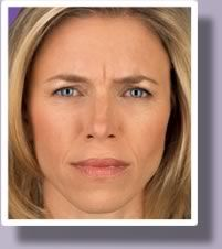 A blonde woman with a noticeable wrinkle between her eyebrows, before and after BOTOX.