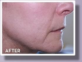 A closeup view of a woman's jaw line after Affirm™ Laser treatment.