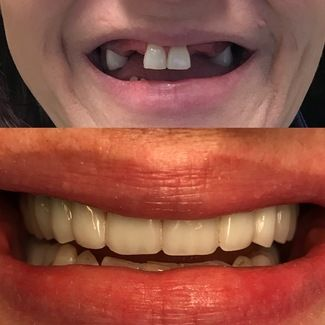 All on Four Upper Dental Implant